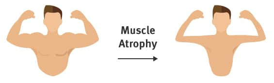 Stroke recovery stage 1 - muscle atrophy suffering