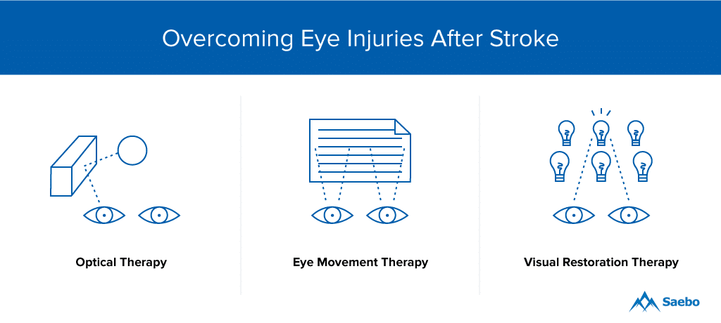 Eye Exercises for Overcoming Eye Injuries After a Stroke