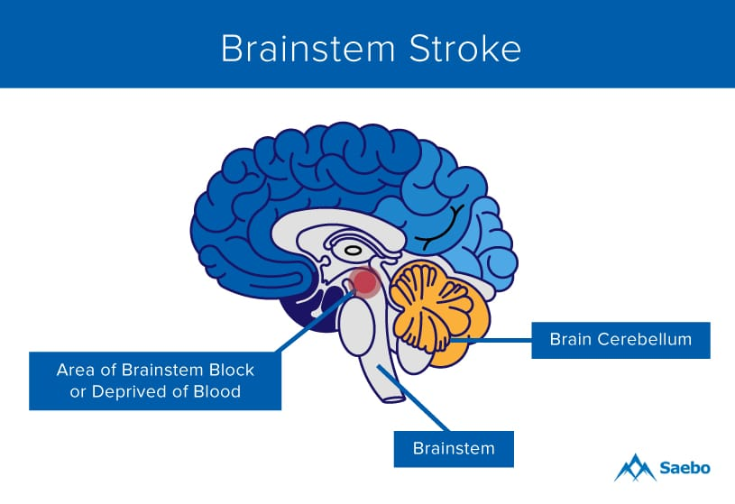 What Is A Brainstem Stroke Saebo