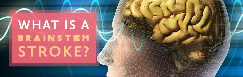 What-is-a-Brain-Stem-Stroke-blog