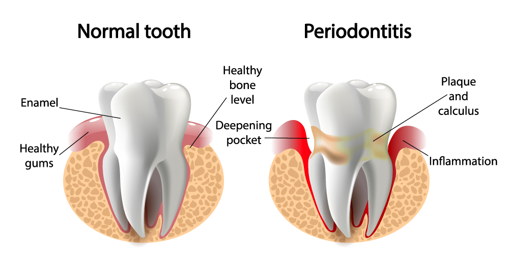 Periodontitis, Gum Disease, Gum Disease and Stroke