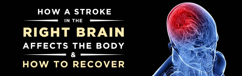 Guide to Recovering From a Right Brain Stroke