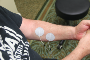 where to place electrodes on arm