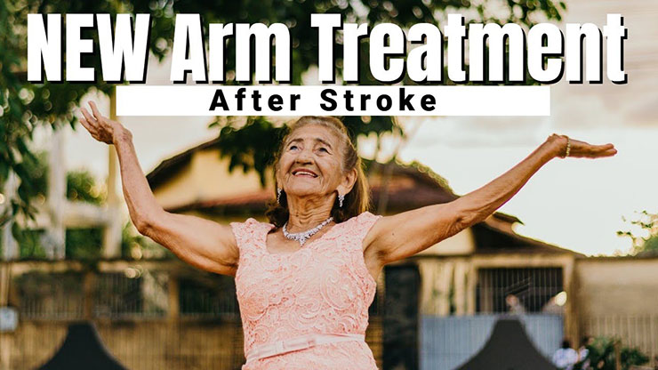 New Arm Treatment After Stroke